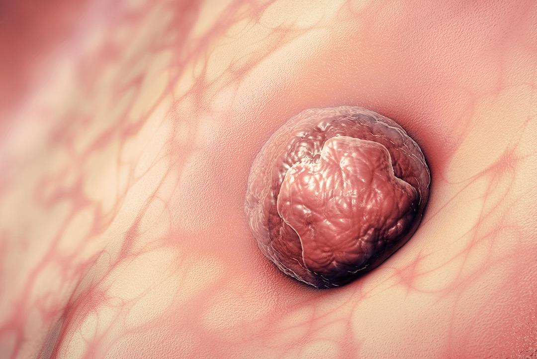2 st week of pregnancy: implantation of the egg